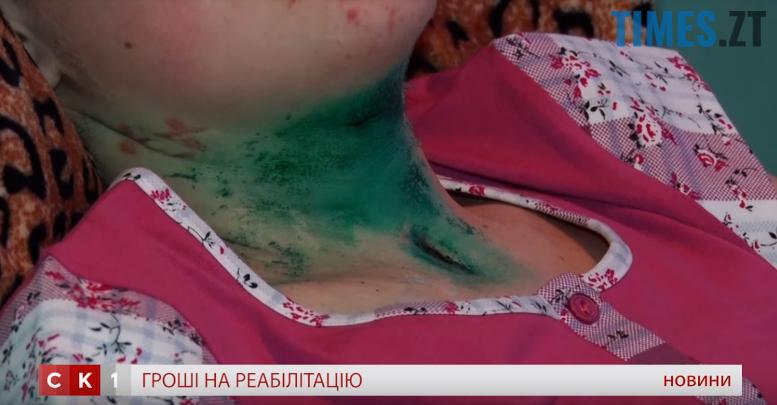 3 - 3 січня скалічили Вікторію Шилюк. А що святкував 4 січня Богдан Ходак?