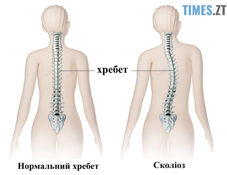 spine scoliosis - Сколіоз у дітей: профілактика, діагностика та думка експерта