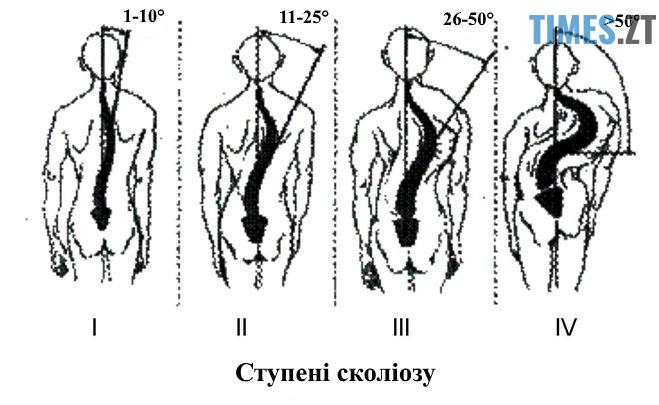 stadii skoliozy - Сколіоз у дітей: профілактика, діагностика та думка експерта