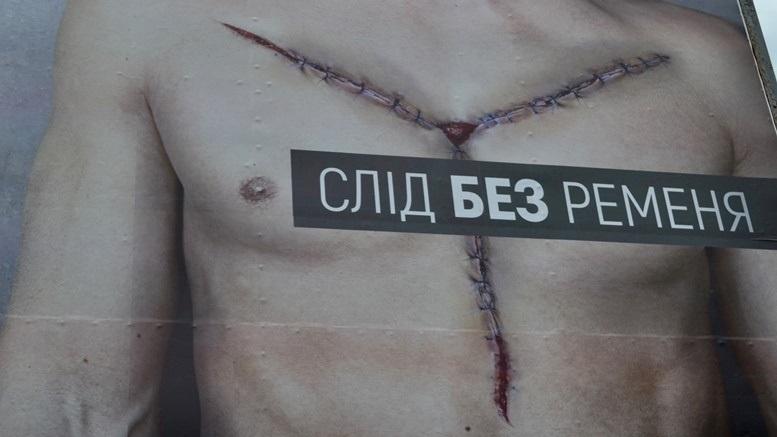 DSC 0637 - «Трупи рекламують!» Мешканців Житомира дратує бридка соціальна реклама (ФОТО)