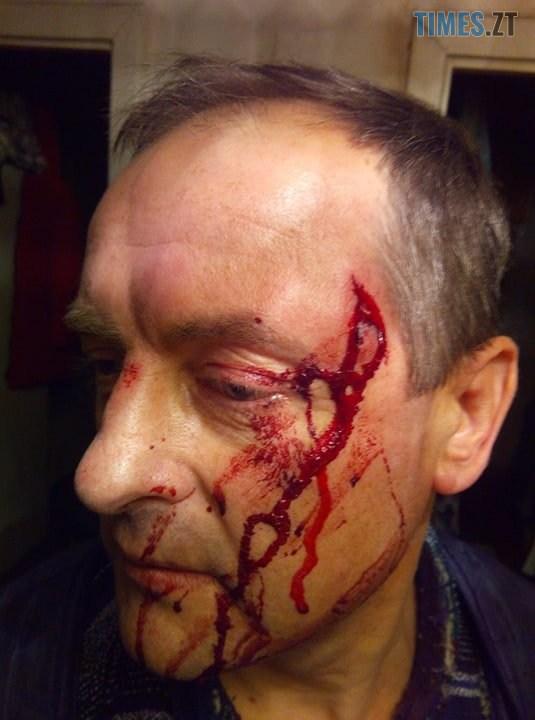 75472848 597812074141056 2360128621286260736 n - На Житомирщині невідомі намагалися вбити депутата районної ради у його власному будинку (ФОТО)