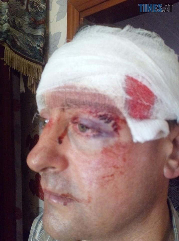 75593825 597811967474400 8135264513617297408 n - На Житомирщині невідомі намагалися вбити депутата районної ради у його власному будинку (ФОТО)