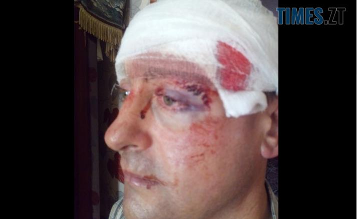Screenshot 4 713x437 - На Житомирщині невідомі намагалися вбити депутата районної ради у його власному будинку (ФОТО)