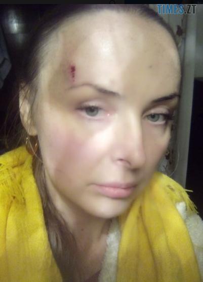 Screenshot 5 - На Житомирщині невідомі намагалися вбити депутата районної ради у його власному будинку (ФОТО)