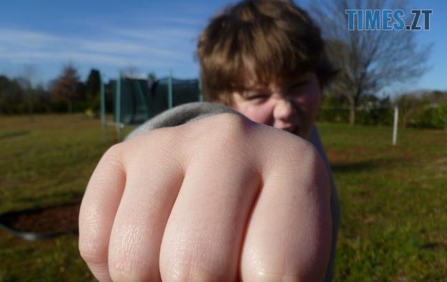 fist bump 933916 960 720 2 650x410 - На Житомирщині лікарі борються за життя 13-річного підлітка, якого ровесник зіштовхнув зі сходів