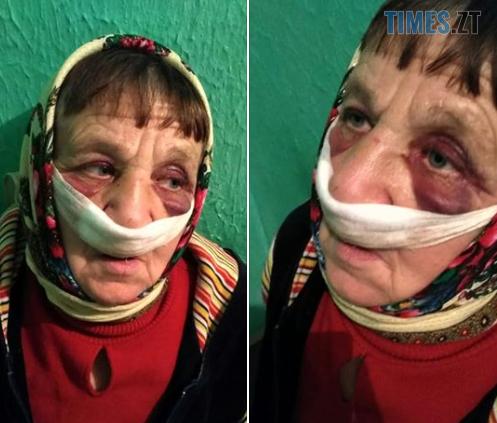 Screenshot 4 13 - На Житомирщині підприємець жорстоко побив пенсіонерів через випасання коня на його землі, - соцмережі (ФОТО)