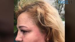 cropped Screenshot 31 e1590142894325 260x146 - У Житомирі лікар медзакладу побив місцеву волонтерку