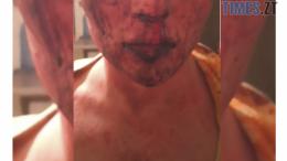 cropped Screenshot 4 1 e1588712287764 260x146 - ЛГБТ-трагедія чи банальний грабіж: в Житомирі набирає обертів кримінальний скандал через невдале гей-побачення
