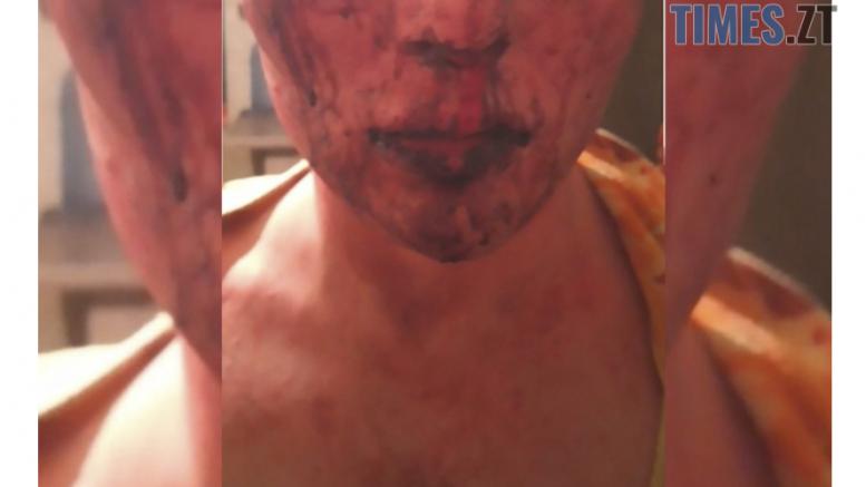 cropped Screenshot 4 1 e1588712287764 - ЛГБТ-трагедія чи банальний грабіж: в Житомирі набирає обертів кримінальний скандал через невдале гей-побачення