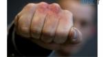 cropped Screenshot 1 7 e1591447008766 150x84 - На Житомирщині внаслідок бійки постраждав народний депутат