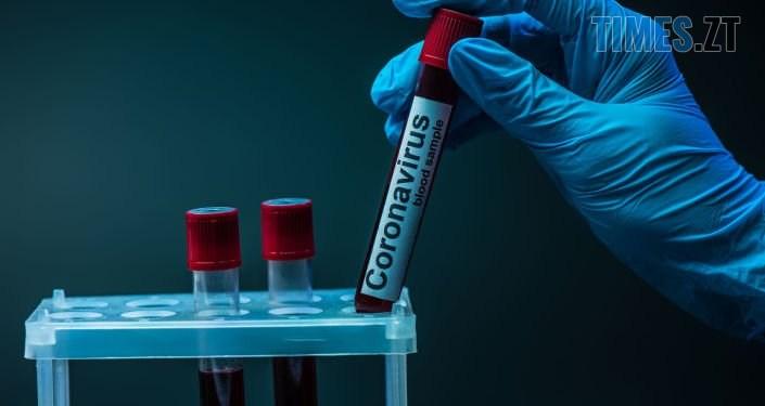 5f1d24ea346fa 1594536382 81e9dc1081872b937d37 1jpg - У Малинському дитсадку виявили коронавірус, заклад закрили на карантин