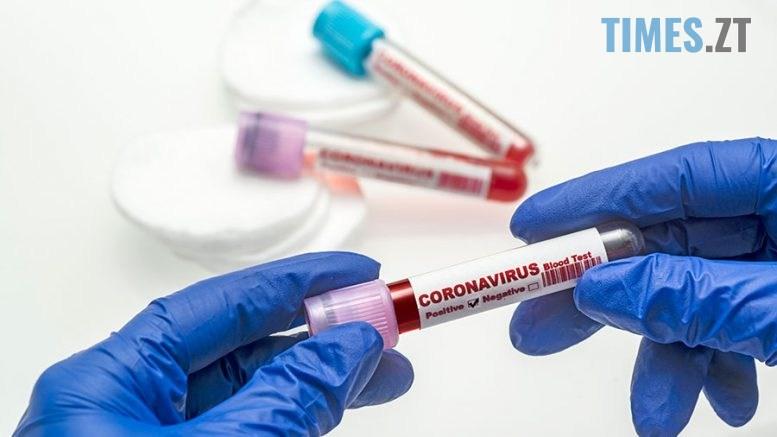 koronavirus 1 777x437 - Подвійний стрибок: на Житомирщині кількість інфікованих коронавірусом зросла удвічі