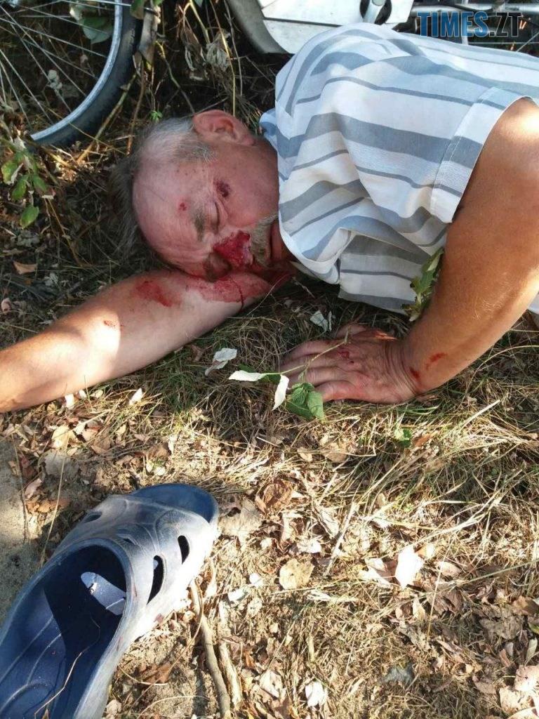 photo5395653013672144531 768x1024 - На території Тетерівського масиву невідомий водій збив чоловіка, зараз він в реанімації. Поліція бездіє, рідні розшукують свідків