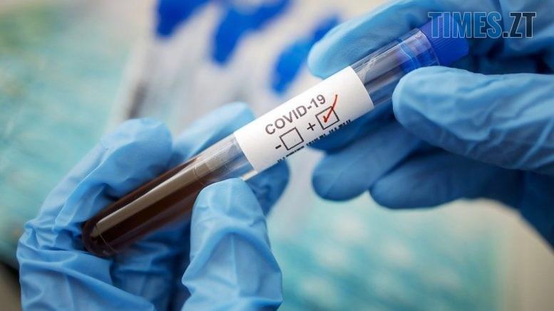 test 777x437 - На Житомирщині загальна кількість захворілих коронавірусом збільшилася на 118 осіб