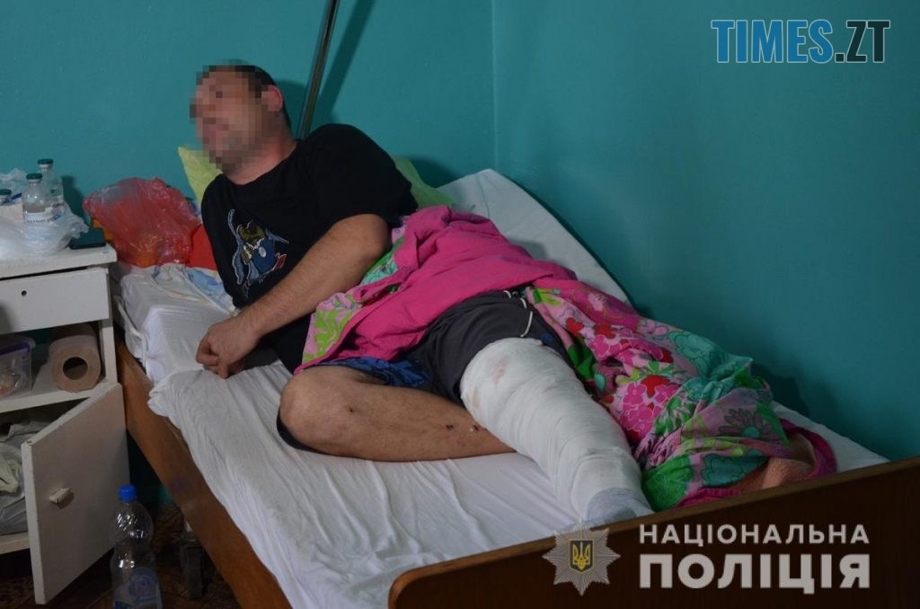 DSC 0064  1024x678 - На Житомирщині житель столиці підстрелив грибника (ФОТО)