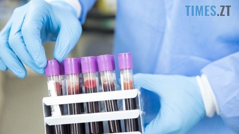 korona 1 777x437 - На Житомирщині зареєстровано ще 155 інфікованих коронавірусом за минулу добу