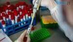 630 360 1584599744 207 150x86 - У Житомирській області за добу різко зменшилася кількість захворілих коронавірусом: зафіксовано менше 200 випадків