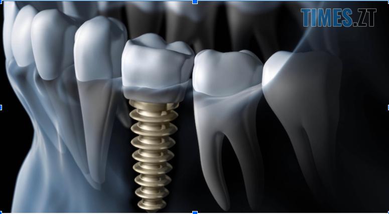 Screenshot 1 - Титанові стержні, цирконієві зуби: сучасні технології імплантації зубів