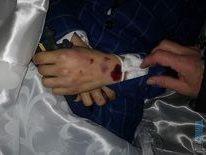 ruky 1 e1609248860860 - Вбивство 16-річного хлопця у Бердичеві: коментар рідних і поліції (фото)